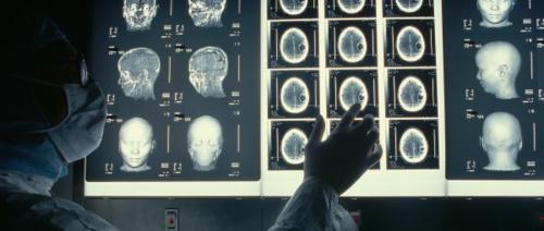 Political-brain-mri-600