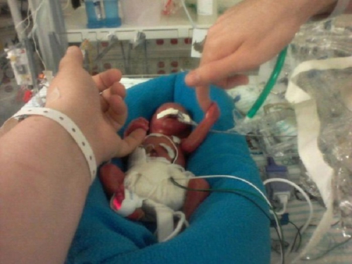 Prematurebaby13
